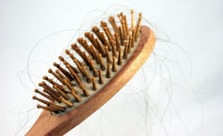perte de cheveux par endroits et alop cie fausse couche et trouble hormonal. Black Bedroom Furniture Sets. Home Design Ideas
